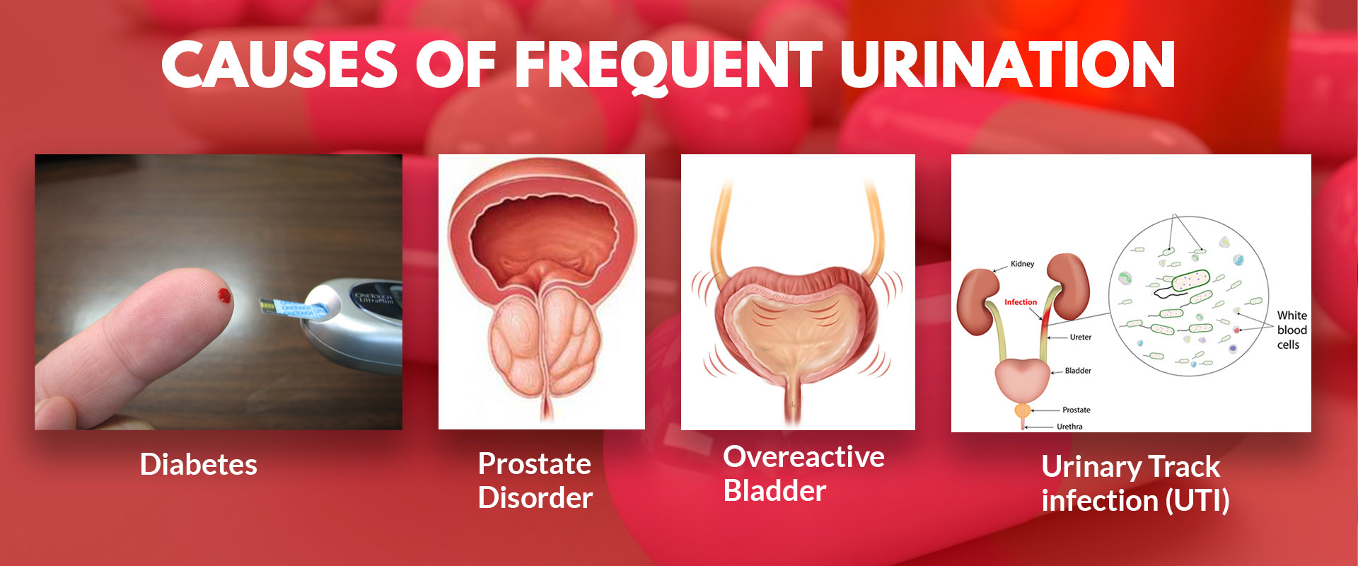 FREQUENT_URINATION