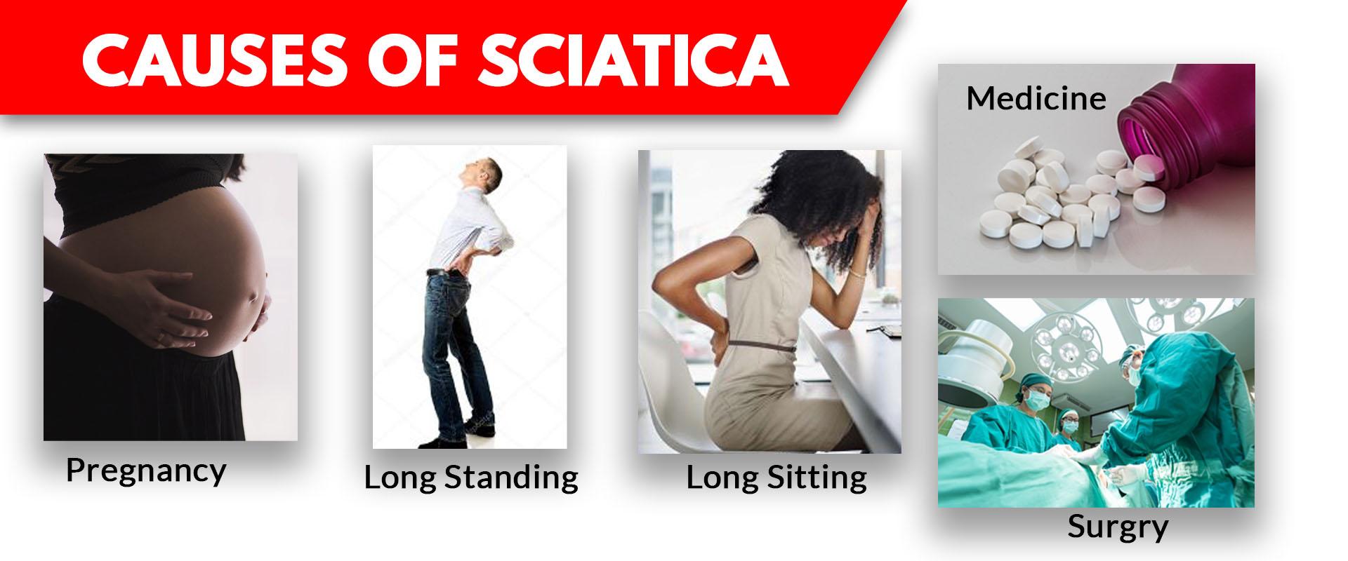 SCIATICA_CAUSE